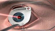 أضرار عمليات تصحيح البصر
