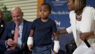اول طفل في العالم يخضع لعملية زراعة يدين