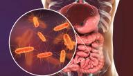 علاج بكتيريا الأمعاء بالأعشاب