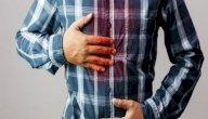 هل يوجد علاج لحرقة المعدة بالأعشاب؟ وما رأي العلم؟