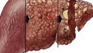 علاج سرطان الكبد بالأعشاب: حقيقة أم خرافة قد تضرك؟