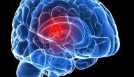 أعراض ورم المخ الكاذب