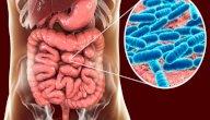 أعراض بكتيريا القولون