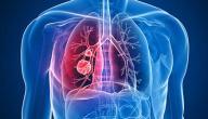 أعراض سرطان الرئة المتقدمة