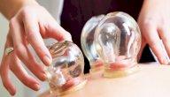 علاج الشلل الرعاش بالحجامة: حقيقة أم خرافة قد تضرك؟