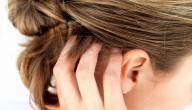 أسباب تغيرات تركيبة الشعر