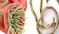 علاج دودة الأسكارس بالثوم