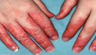 علاج الأكزيما في اليد