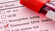 أسباب مرض الثلاسيميا
