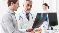 نسبة الشفاء من سرطان الغدد الليمفاوية