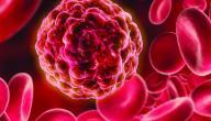 خطورة نقص الصفائح الدموية