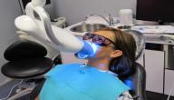 تبييض الأسنان في العيادة