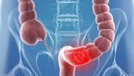 معلومات عن سرطان المستقيم
