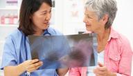 طرق علاج تليف الرئة