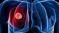 أعراض التهاب الشعب الهوائية