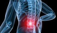 أعراض التهاب العصب الوركي