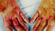 معلومات عن التهاب الجلد التماسي