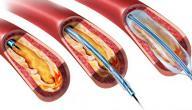 أعراض ضيق الأوعية الدموية