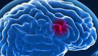 أسباب ضمور المخ