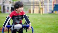 علاج ضمور المخ عند الأطفال بالأعشاب