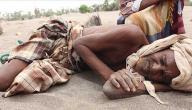 بحث حول سوء التغذية