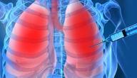 معلومات عن خزعة الرئة