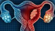 معلومات عن خزعة الرحم