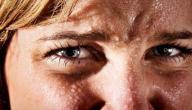 معلومات عن التهاب الغدد العرقية