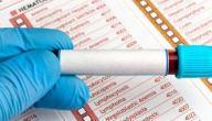 كيفية قراءة تحليل فقر الدم