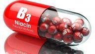 مكملات فيتامين B3