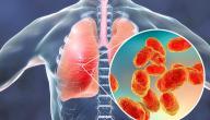 طرق للوقاية من التهاب الصدر