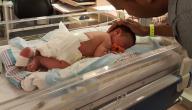 علاج فتحة الظهر عند حديثي الولادة
