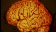 أعراض ضمور القشرة الدماغية