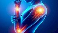عضلات الأطراف العليا: خصائصها ووظائفها والأمراض المعرضة لها