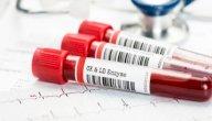 ما هو تحليل إنزيمات القلب ومتى يتوجب عليك القيام به؟