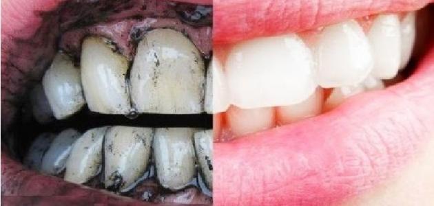 طريقة تبييض الأسنان