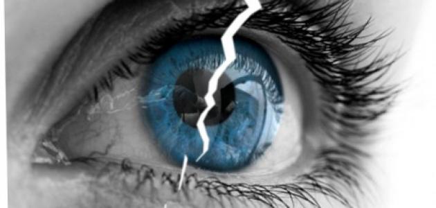 سؤال و جواب حول تصحيح البصر باليزر