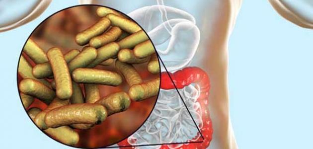 العدوى البكتيرية في الجهاز الهضمي