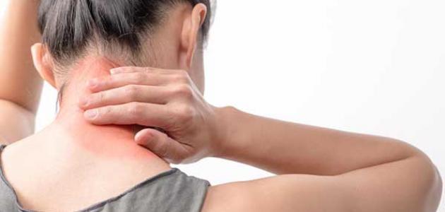 أعراض-مرض-الفيبروميالغيا/