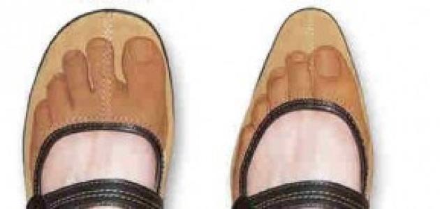 مضار ارتداء الأحذية الضيقة