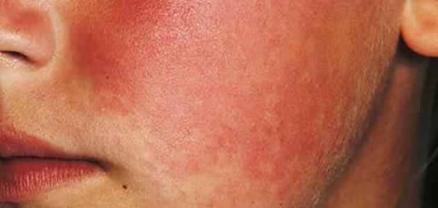 أسباب القشعريرة المصاحبة للطفح الجلدي