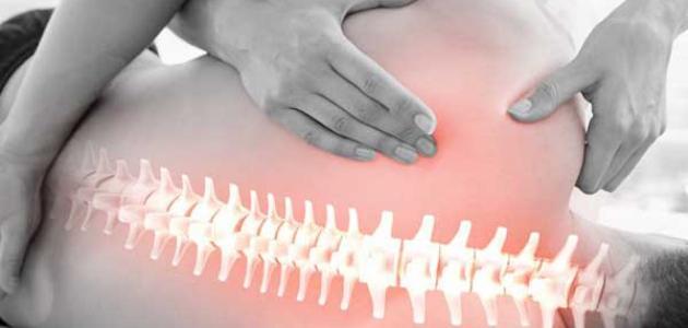 علاج العمود الفقري بالرياضة
