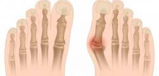 طرق لتخفيف ألم أورام أصابع القدمين
