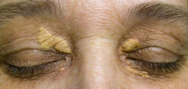 طرق طبيعية لعلاج الكيس الدهني في العين