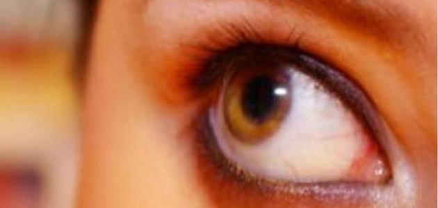 لفحة هواء العين أسبابها وعلاجها