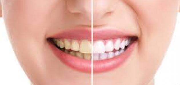 طرق تبييض الأسنان واسباب اصفرارها