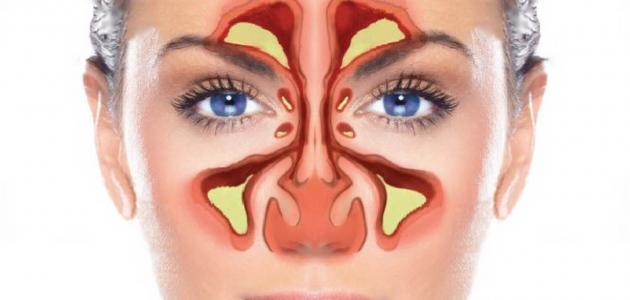 التهابات الجيوب الأنفية أنواعها وطرق علاجها