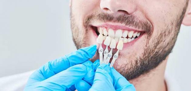 علاج تآكل مينا الأسنان