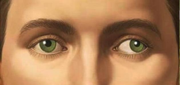 ما هو انحراف البصر ؟