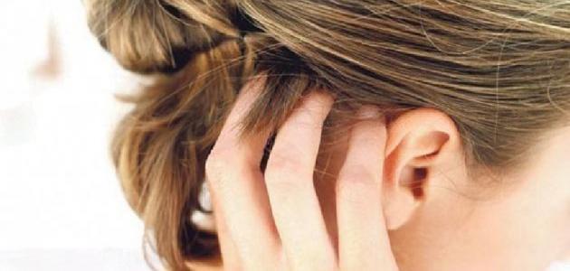 علاج الحكة في فروة الرأس